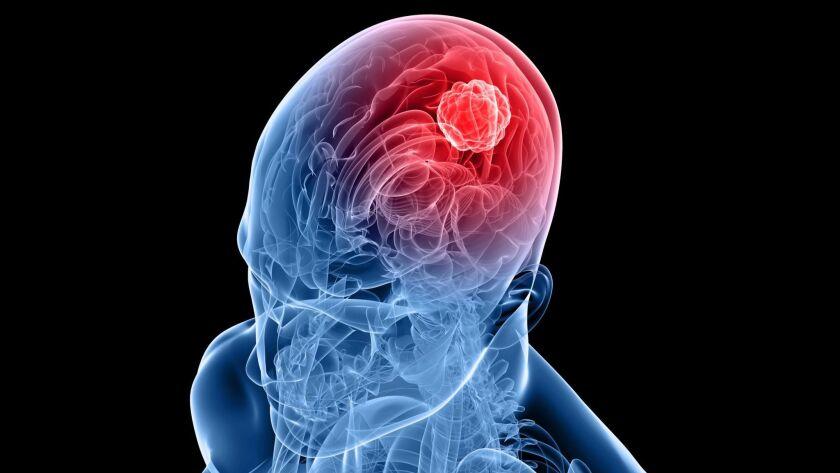 An illustration of a glioblastoma tumor in the brain.