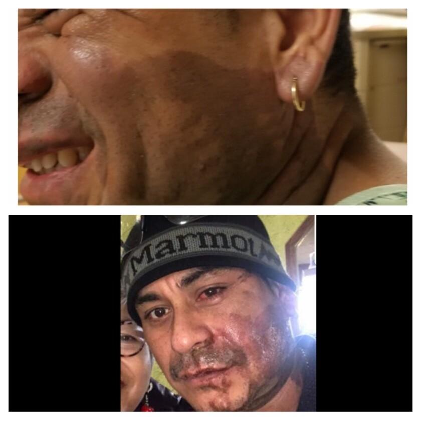 Mahud Villalaz muestra sus quemaduras de segundo grado tras ataque.