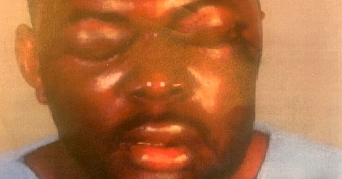 Black man's lawsuit alleges beating by L.A. County sheriff's deputies during traffic stop