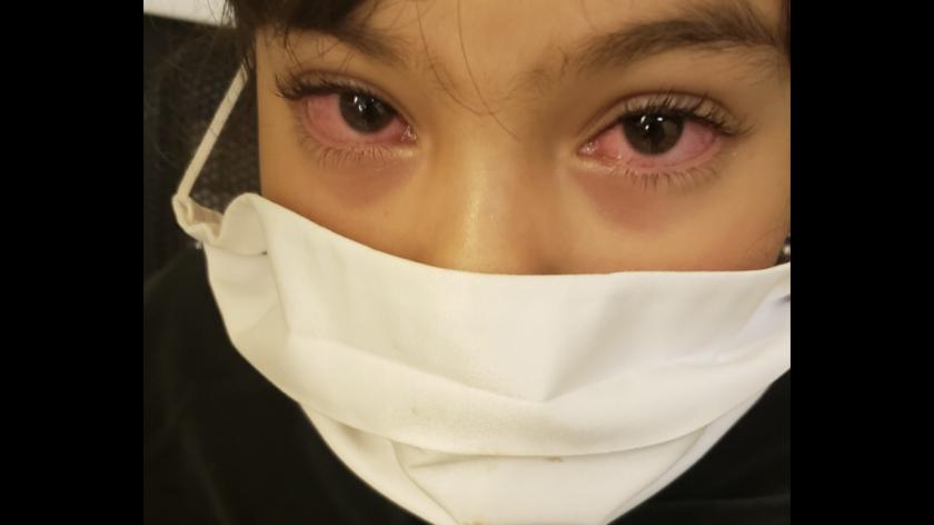 Xitlali muestra sus ojos rojos antes de ingresar al hospital de urgencias.