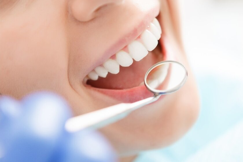 According to L.A.-area dentists, bonding, veneers and whitening are some of the top requested dental procedures that patients are inquiring about.