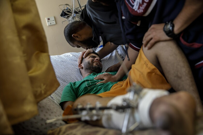 Baha Abu Ayash cries after being told by relatives that his leg requires amputation at Shifa Hospital in Gaza City.