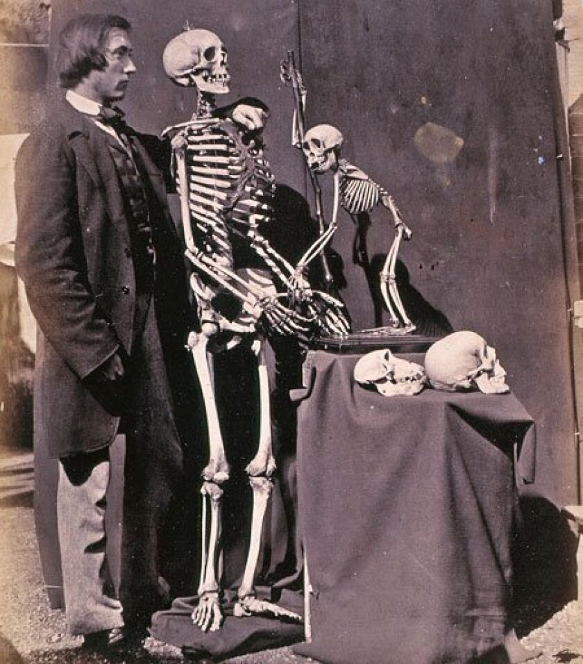 """Kinship between humans and other animals was already a subject of interest in 1857 — two years before Charles Darwin published """"On the Origins of Species."""" Here, photographer Charles Dodgson (better known as Lewis Carroll, author of """"Alice in Wonderland"""") photographed a friend, Reginald Southey, with skeletons of a human and other primates. The image is part of the """"Endless Forms: Charles Darwin, Natural Science and the Visual Arts"""" exhibit at the Fitzwilliam Museum, University of Cambridge. (National Media Museum, Bradford UK)"""
