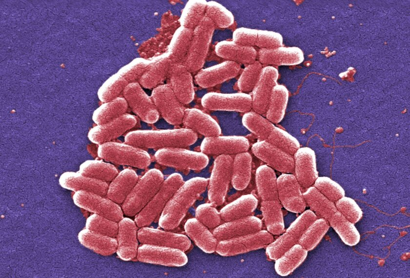 This 2006 colorized scanning electron micrograph image made available by the Centers for Disease Control and Prevention shows the O157:H7 strain of the E. coli bacteria. On Wednesday, May 26, 2016, U.S. military officials reported the first U.S. human case of bacteria resistant to an antibiotic use