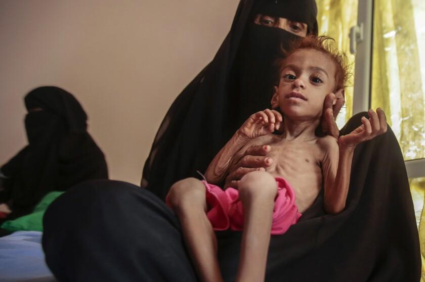 A woman holds a malnourished boy.