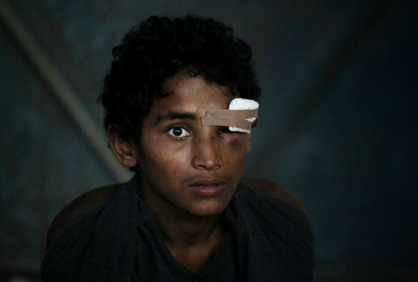FILE - In this Friday, May 15, 2015, file photo, a newly arrived ethnic Rohingya youth, who said he was injured in the eye during a brawl on the boat, sits inside a temporary shelter at Kuala Langsa Port in Langsa, Aceh province, Indonesia. More than 2,000 desperate Rohingya refugees have landed on