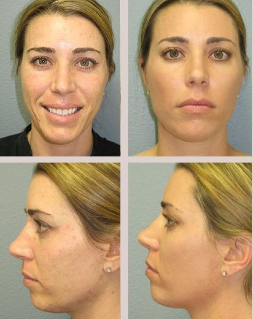 Results after the Vi Peel procedure at Dr. Kincaid's La Jolla plastic surgery clinic for a young female patient with severe acne scarring.