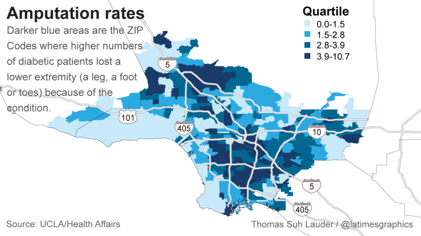 Amputation rates in Los Angeles County