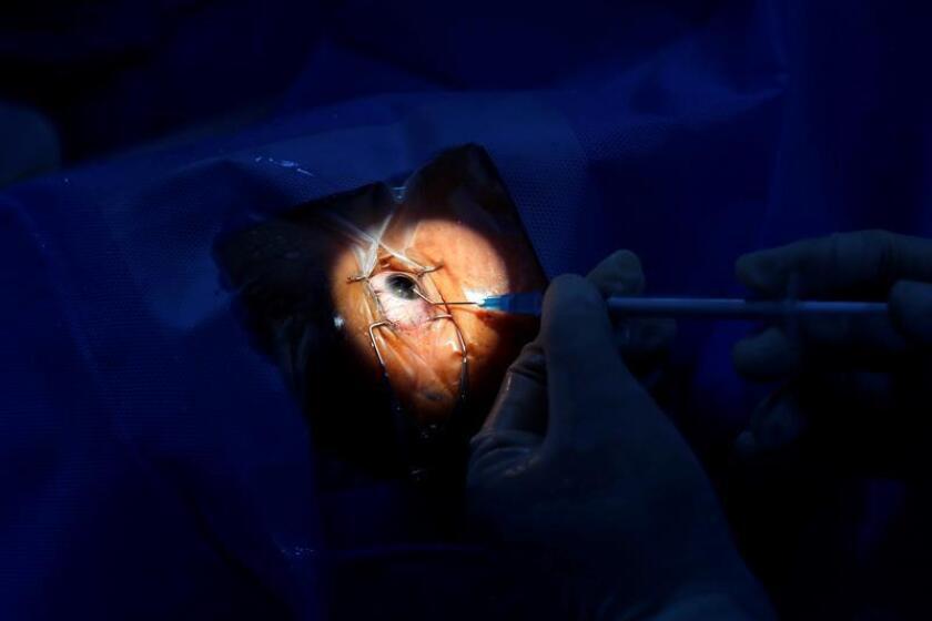 Un paciente se somete a una operación de cataratas. EFE/ARCHIVO