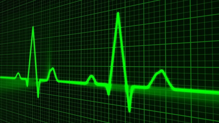 Stylized representation of a heartbeat chart.