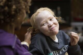Albino sisters from Tanzania granted asylum