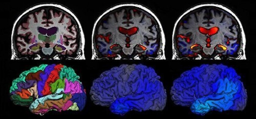 Serial MRI brain scans, taken six months apart, show progression from mild cognitive impairment to Alzheimer's disease with significant atrophy (blue) and ventricle enlargement (orange/red).