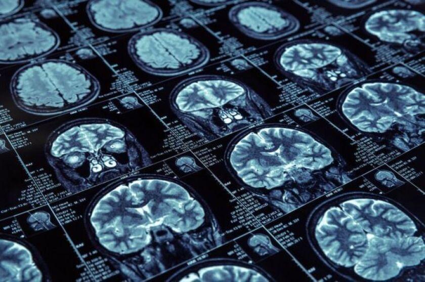 La mutación Jalisco es una de las 200 mutaciones en el gen PSEN1 que están relacionadas con el Alzheimer. Todas las personas que la tienen, desarrollan la enfermedad a edades muy tempranas, a alrededor de los 40 años.