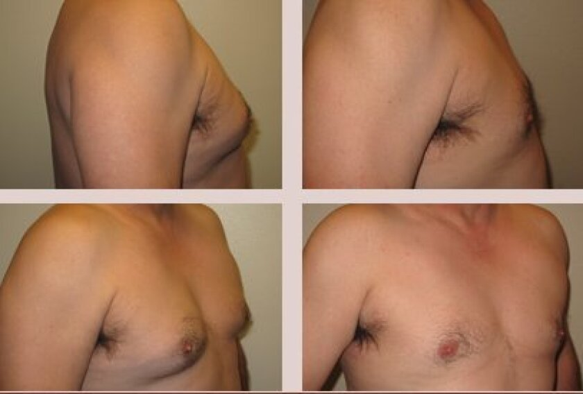 Before and after pictures of male breast reduction surgery.