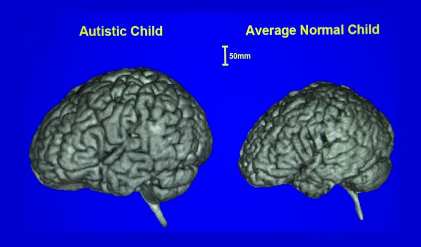 Scientists say that part of the brain of young people with autism is significantly larger than those whose brains develop normally.
