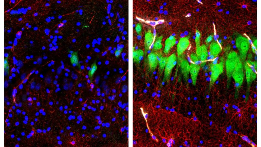 This combination of images provided by the Yale School of Medicine in April 2019 shows stained micro