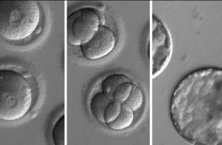 In a first, scientists rid human embryos of a potentially fatal gene mutation by editing their DNA