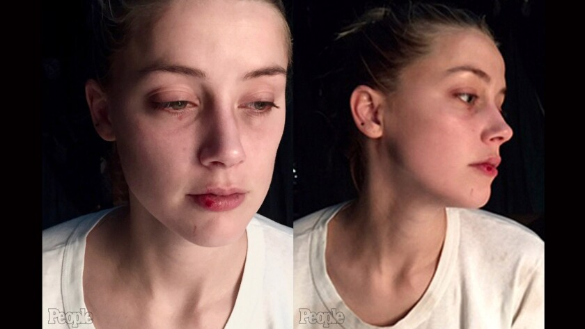 New photos of a bruised Amber Heard surface in People.