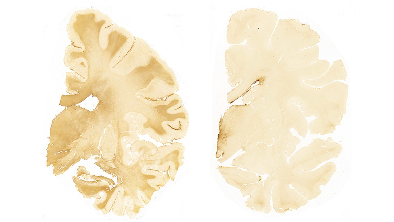 Repeated Head Hits Not Just Concussions >> Forget Concussions The Real Risk Of Cte Comes From Repeated