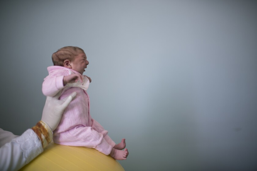 Two-week-old Sophia, who was born with microcephaly, attends a physical therapy session in February at the Pedro I municipal hospital in Campina Grande, Brazil.