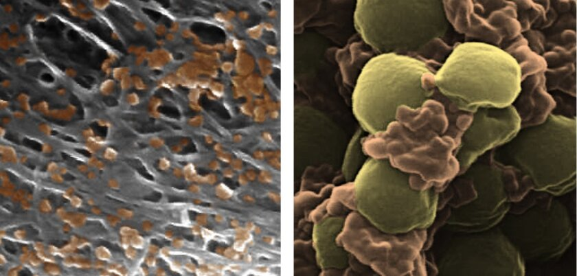 Pseudocolored scanning electron microscope images of platelet-membrane-coated nanoparticles (orange) binding to the lining of a damaged artery (left) and to MRSA bacteria (right). Each nanoparticle is approximately 100 nanometers in diameter, 1,000 times thinner than an average sheet of paper.
