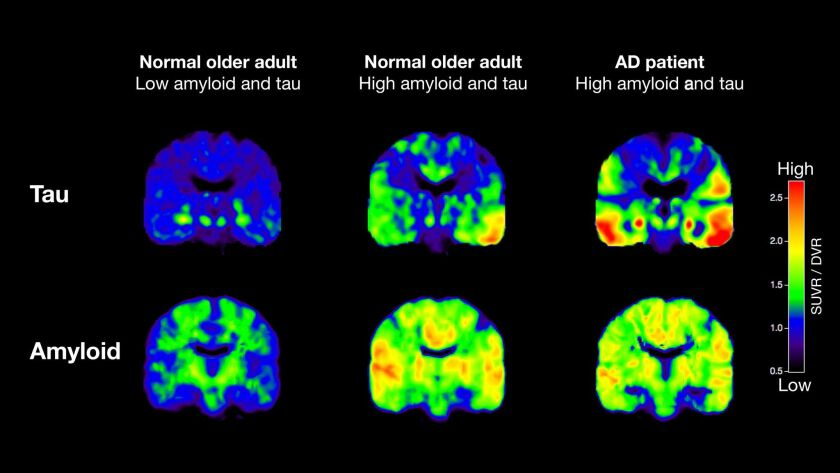 PET scans that track tau (top row) and beta-amyloid from two normal older people and a patient with