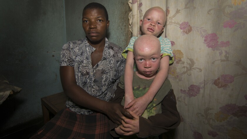 A Malawian woman and her two children, who have albinism, in a country where those with the conditio