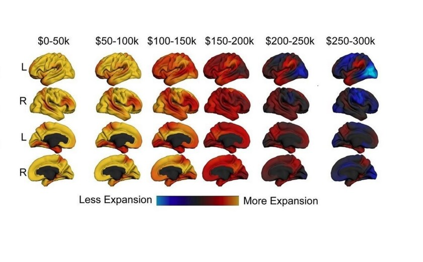 A study suggests that income correlates with an expanding brain, and small changes can have bigger effects at the lower end of the income scale.