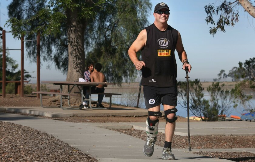Dr. Bryon Solberg works out several times a day, part of that being a walk/run around Lake Miramar. He has not let a congenital spine injury stop him.
