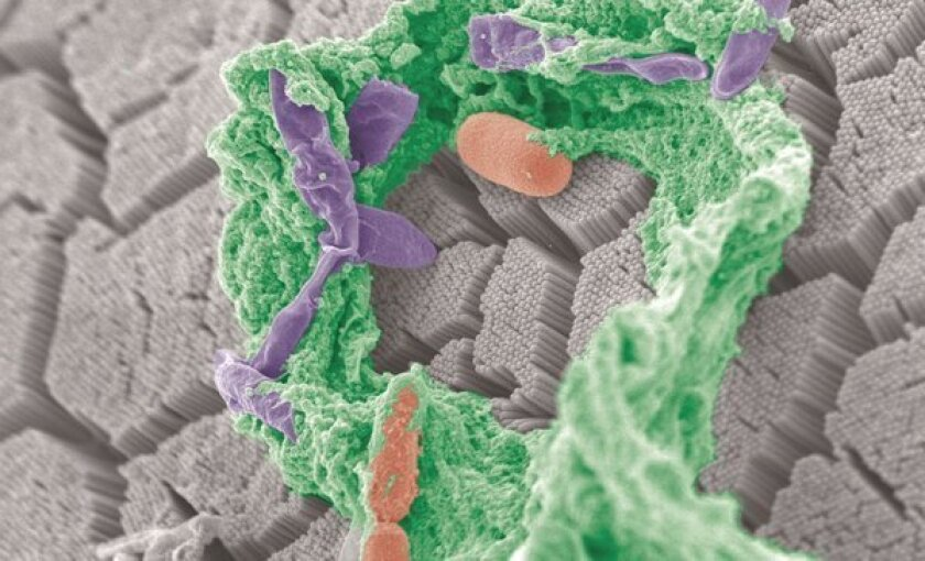 An electron microscope scan of bacteria in the intestines of a mouse. Researchers are learning more about how microbes in the digestive system influence health.