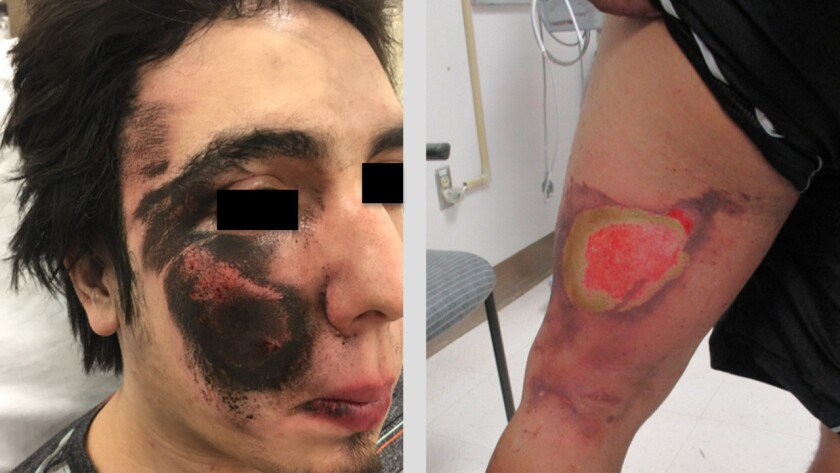 The patient on the left suffered a flame burn and blast injury to the face after an e-cigarette exploded during use. The patient on the right, also wounded in an e-cigarette explosion, has a wound characteristic of an alkali chemical burn.