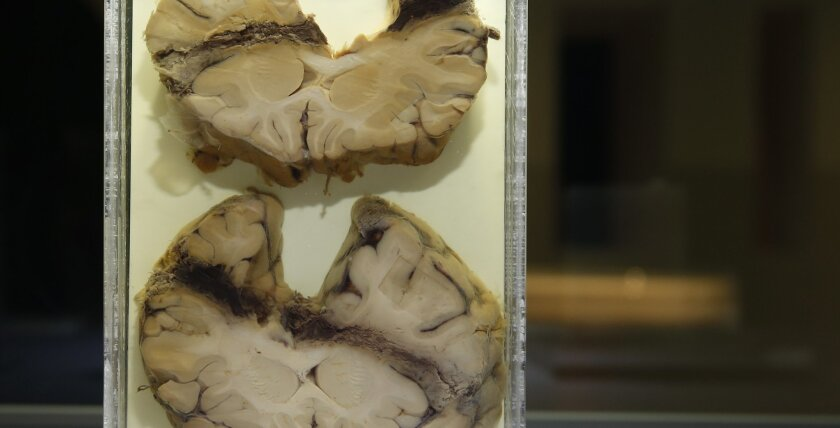 "A section of a human brain showing the effects of, and the path of a bullet in a person who committed suicide, at a press preview of an exhibition of Forensics at the Wellcome Collection in London, Tuesday, Feb. 24, 2015. An exhibition at London's art-meets-science Wellcome Collection takes visitors on a journey through the afterlife of violent death, from crime scene to mortuary, laboratory and courtroom. It's a world that's familiar from movies and TV dramas. But curator Lucy Shanahan said Tuesday that the exhibition's aim is to show the ""real lives and personal narratives at the heart of forensics."" (AP Photo/Alastair Grant)"