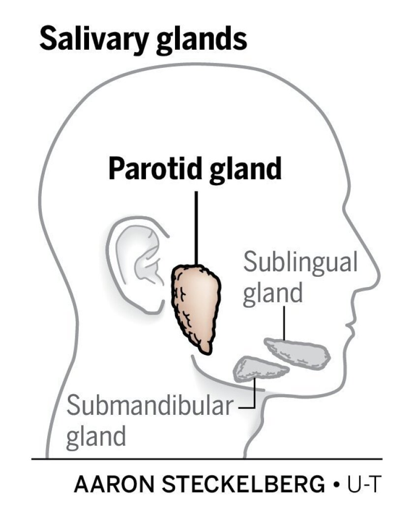 The parotid is a salivary gland that pumps saliva into the mouth. Parotid tumors can result in facial nerve disorders.