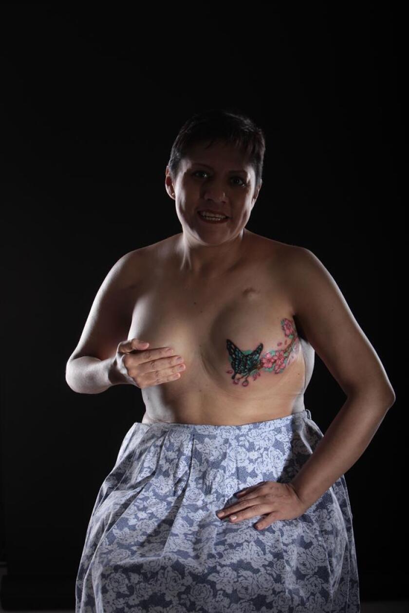 Fotografía de archivo fechada el 13 de octubre de 2015, de una mujer mostrando la cicatriz de una mastectomía en Ciudad de México (México). Uno de cada 10 casos de cáncer es hereditario y se da más frecuentemente en mujeres que en hombres, aseguró Rosa María Álvarez Gómez, coordinadora de la Clínica del Cáncer Hereditario en el Instituto Nacional de Cancerología (INCAN). EFE/ARCHIVO